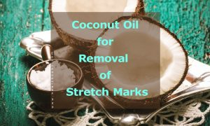 remove-stretch-marks